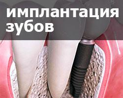 имплантация зубов в Чебоксарах